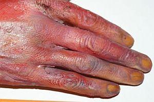 Nachbildung einer abgerissenen Hand